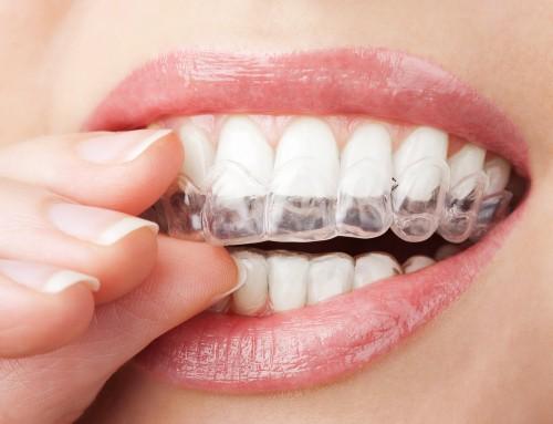 Her er alt, hvad du skal vide om tandblegning